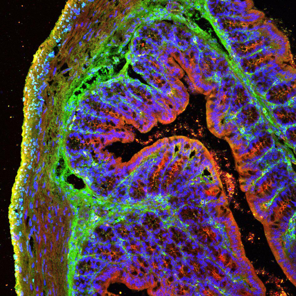Coupe de l'intestin d'une souris atteinte de la maladie d'Azheimer