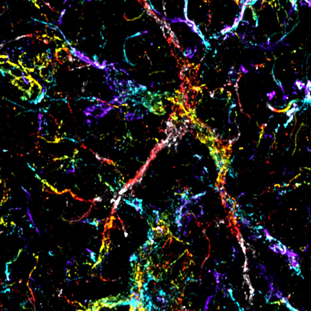Microscopie confocale