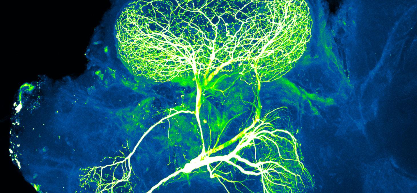 Un neurone (en vert et en blanc) dans le cerveau d'un insecte. Le défi consiste à faire repousser l'axone du neurone quand celui-ci a été lésé, par exemple dans un accident touchant la colonne vertébrale. NICHD/N © Gupta, CC BY-SA