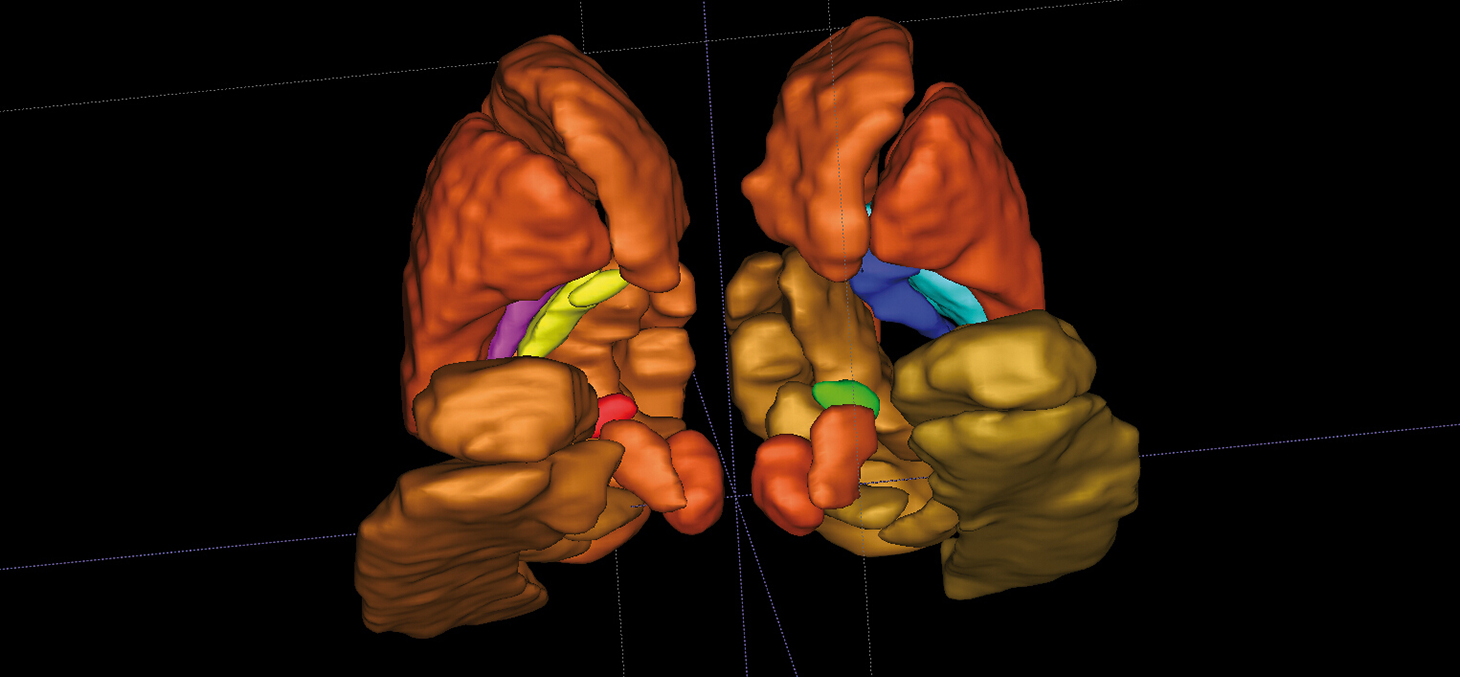 Structures cérébrales profondes en 3D des 2 hémisphères du cerveau ©Inserm/U746